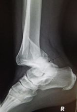 300px-ankledislocation-wikipedia