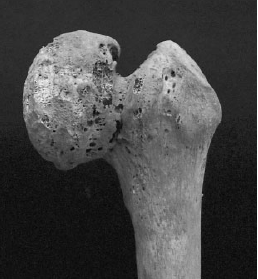 Changes in the associated femoral head (Mafart et al. 2007)
